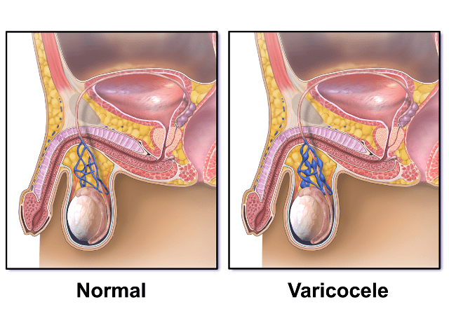 Varicocele- Leading Cause of Infertility
