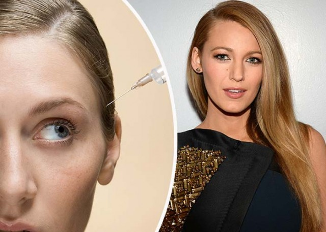 crazy-beauty-trends-ever-scalp-botox