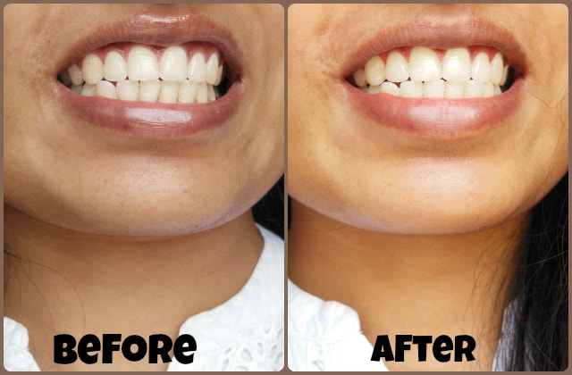 SMILE Brilliant LED Teeth Whitening Kit results