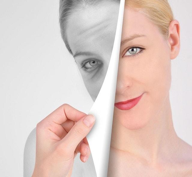 Laser Anti aging